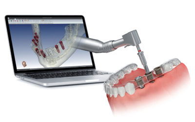 La chirurgia guidata da Day Dentist